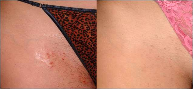epilation maillot gros boutons