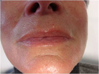 Résultat après injections dermiques d'acides hyaluroniques