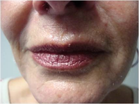 Avant traitement des rides de l'hémi-visage inférieur