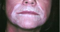 Traitement local adapté à votre type de peau et à votre peeling