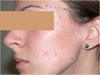 Avant traitement de l'acné par laser ou lumière pulsée