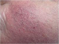 Avant traitement de l'erythrocouperose par laser vasculaire