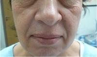 Avant tension de la peau par radiofréquence
