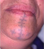 Avant traitement laser pigmentaire du tatouage