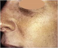 Après traitement par laser ou lumière intense pulsée