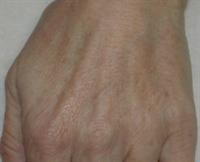 Après traitement pigmentaire par laser pigmentaire ou lampe pulsée