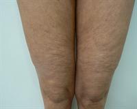 Cellulite sur jambes