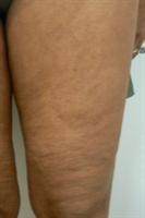 toulouse dermatologie esth tique et lasers dermatologue docteur serge dahan lasers m dicaux. Black Bedroom Furniture Sets. Home Design Ideas